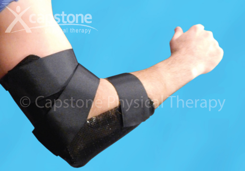 Elbow Orthosis – Immobilization