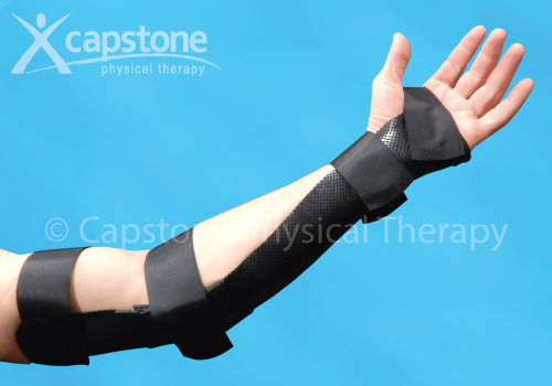 Elbow Wrist Hand Orthosis – Immobilization