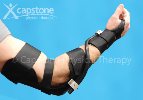 Elbow Wrist Hand Orthosis – Mobilization