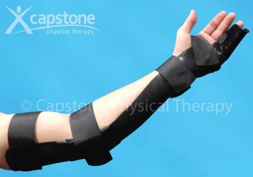 Elbow Wrist Hand Finger Orthosis – Immobilization
