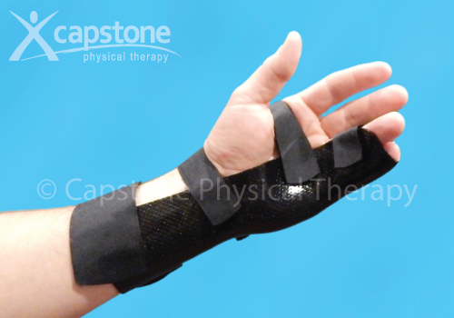 Wrist Hand Finger Orthosis - Immobilization