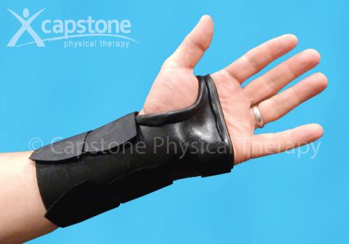 Wrist Hand Orthosis – Immobilization
