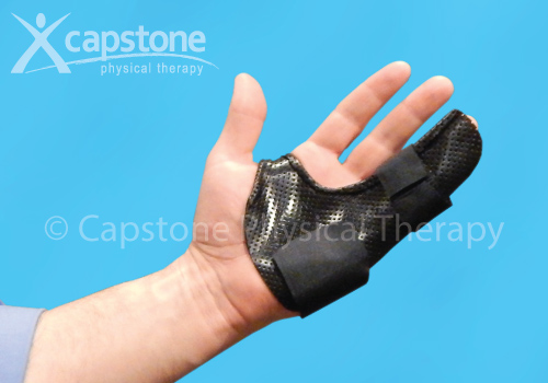 Hand Finger Orthosis – Immobilization