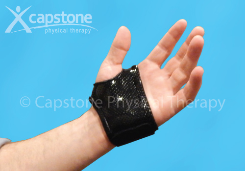 Hand Orthosis – Immobilization