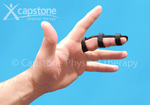 Finger Orthosis – Immobilization