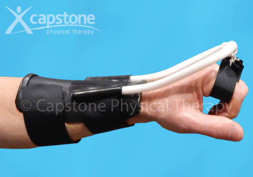 Wrist Hand Finger Orthosis – Mobilization – Dynamic Extension